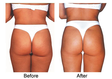 Body Contouring & Cellulite Treatment